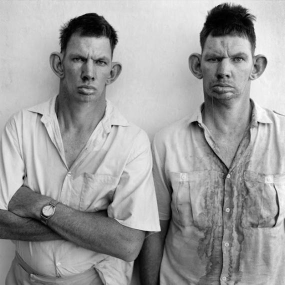 Дрейзи и Кейзи близнецы из Западного Трансвааля (провинция ЮАР). История болезни этих людей, вероятно, обусловлена генными мутациями неизвестного происхождения. Оба близнеца немые и имеют умственные способности пятилетних