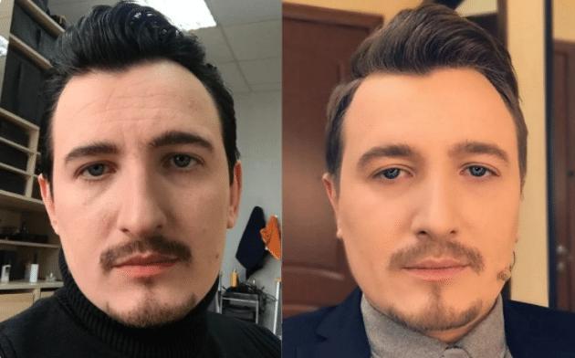 Влад Кадони до и после пластики